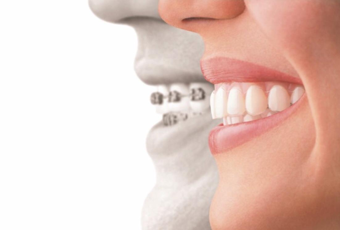 江東区亀戸駅・西大島駅で矯正歯科をお探しなら和田デンタクリニック亀戸